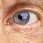 Catarata: sintomas, tratamentos e causas