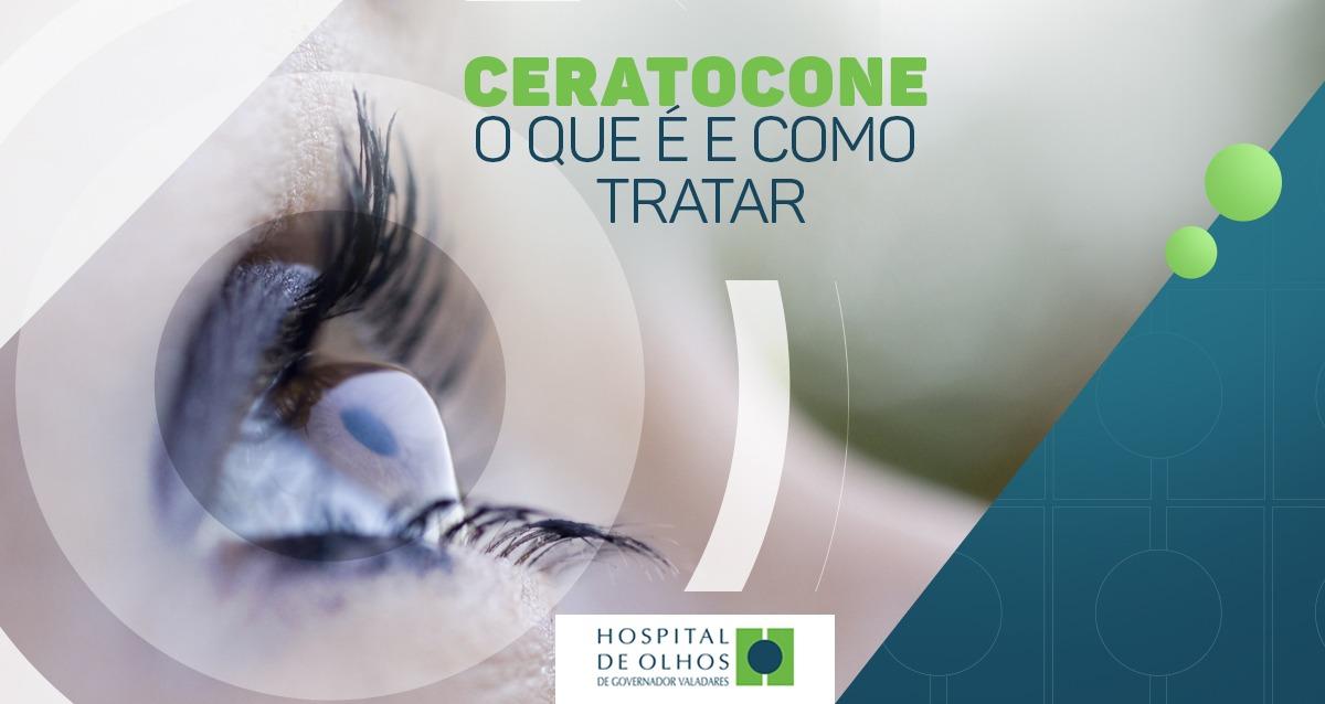 Ceratocone  O que é e como tratar - Hospital de Olhos de Governador  Valadares bd9afc5bfd