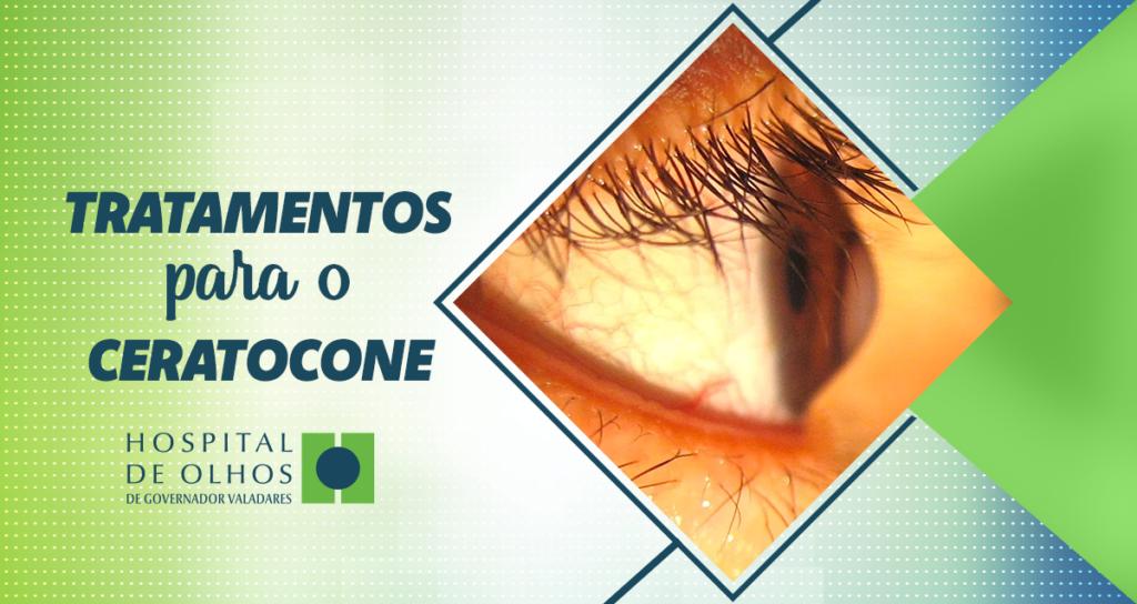 Como já falamos por aqui, o Ceratocone é uma patologia ocular decorrente da  disfunção que afeta o formato natural da córnea. Os indivíduos costumam  receber ... 3941f91059
