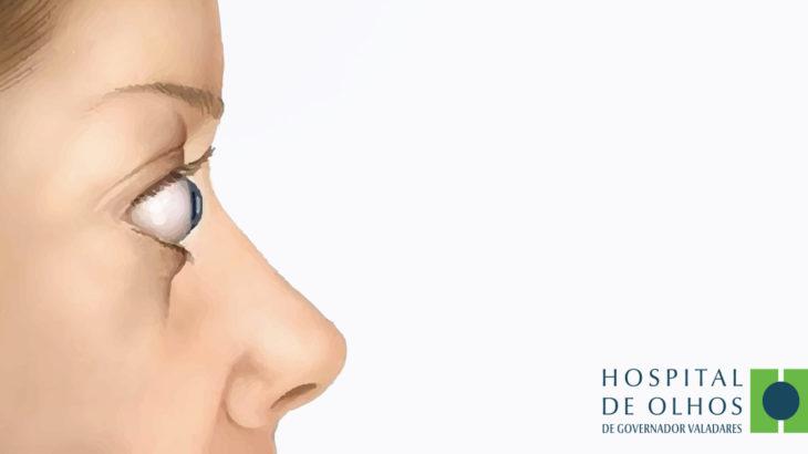 o que exoftalmia causas e sintomas hospital de olhos gv